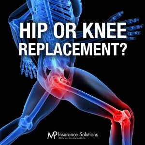 Hip or Knee Replacements